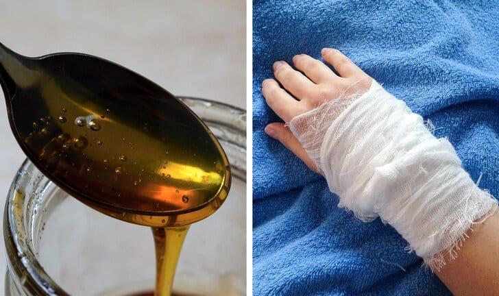 mật ong trị vết thương